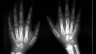 Bolero - Koscate ruke.wmv