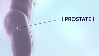 Prostate Cancer Treatment | Cancer Research UK
