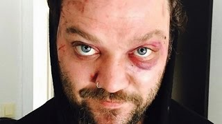The Real Reason We Don't Hear From Bam Margera Anymore