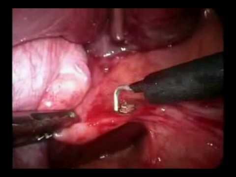 Cirurgia de Vesícula Biliar parte 1 4