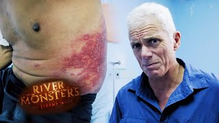 The Parasitic Enemy - River Monsters
