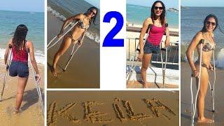 Amputee Woman RHD Keila Resende Beach 02