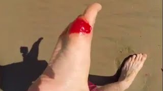 Stung by a Stingray LIVE on film!!