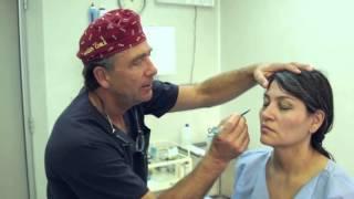 Cirugía de Párpados - Blefaroplastía Superior.