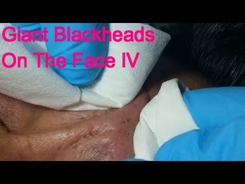 Giant Blackheads On The face - Part IV-