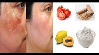 Pigmentation treatment at home in hindi /  झाइयों का उपचार  / skin care tips hindi