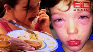 Breakthrough cure for childhood allergies | 60 Minutes Australia