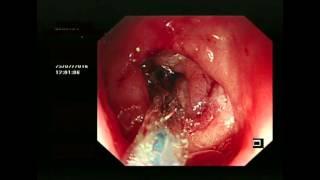 Pyloric stenosis - balloon dilatation