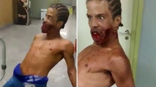 Un patient possédé par Satan 😱