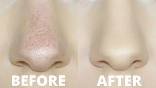 Hacks for oily skin   افضل 2 نصائح تجعل المكياج على البشرة الدهنية أجمل ويدوم اطول   Nora Hatim