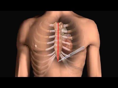 How Does Heart Bypass Surgery Work? Coronary Artery Bypass Graft Procedure Animation - CABG Video