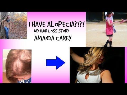 My Alopecia Story// With AMANDA CAREY