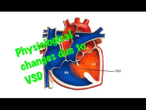 Xxx Mp4 Medical Video Lecture Physiological Changes Due To Ventricular Septal Defect VSD 3gp Sex