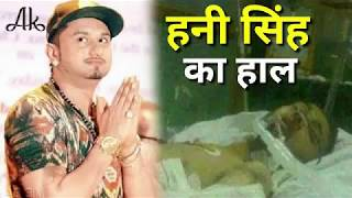 Honey Singh अब क्यों नहीं गाते गाना...Why Honey Singh  not sing now.