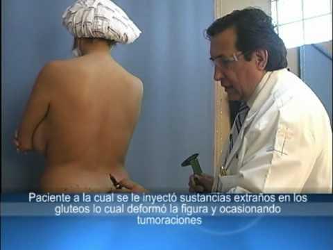 BIOPOLIMEROS RETIRO DE PRODUCTO EN GLUTEOS RECONSTRUCCION DE GLUTEOS