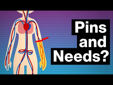 What REALLY Causes Your Limbs to Go Numb