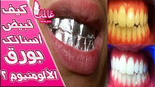 وصفة سحرية لتبييض أسنانك خلال ساعة بورق الألومنيوم