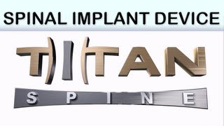 Titan Spine: Trinsic Medical Animation