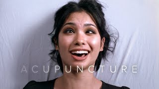 People Get Acupuncture in Slow Motion | First Takes | Cut