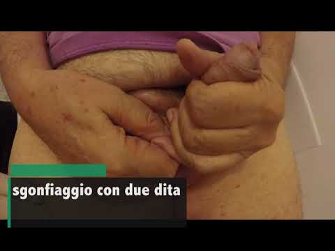 Xxx Mp4 Protesi Peniene Aspetti Post Operatori Dr Diego Pozza 3gp Sex