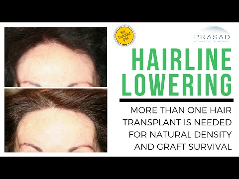 Hairline Lowering Needs at Least Two Hair Transplants for Natural Density and Graft Survival