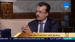 رأى عام - استشارى جراحة المخ والأعصاب: مصر عاجزة عن إصدار تشريعات لنقل الأعضاء