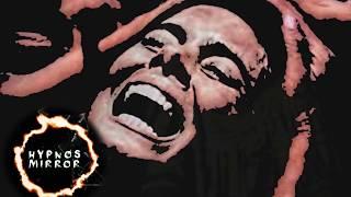 The Terrifying Disease of Laughter, Kuru