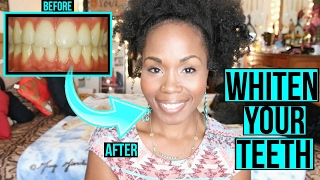 How to Whiten Teeth FAST & NATURALLY | SIMPLE Cleaning & Teeth Brushing Routine