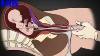 কিভাবে abortion করানো হয় দেখুন how is made abortion