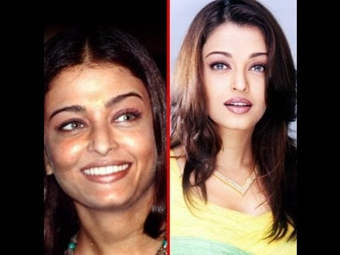 Xxx Mp4 Top 13 Bollywood Stars Before After Plastic Surgery 3gp Sex