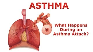 Asthma - What Happens During an Asthma Attack?