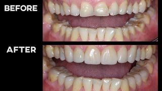 MY TEETH BEFORE vs AFTER