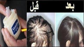 الفازلين و الثوم لانبات فراغات الشعر و الصلع من أول استعمال سريع ومذهل للغاية