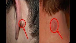 هل لديك انتفاخ كهذا على رقبتك، ظهرك، أو خلف أذنك؟   هذا ما عليك معرفته!