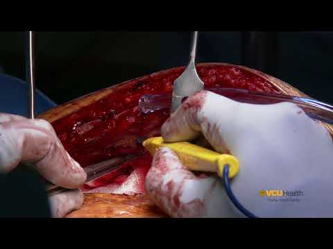 Xxx Mp4 Left Internal Mammary Artery Take Down 3gp Sex
