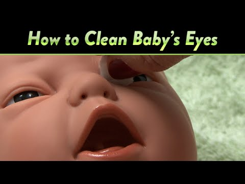 Xxx Mp4 How To Clean Baby 39 S Eyes And Clogged Tear Ducts CloudMom 3gp Sex