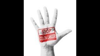 Prof Ali Monis: Cancer Colon .... Curable سرطان القولون .... قابل للشفاء
