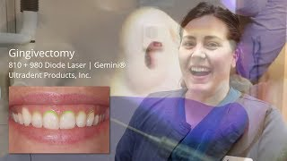 Gingivectomy Results & Testimonial