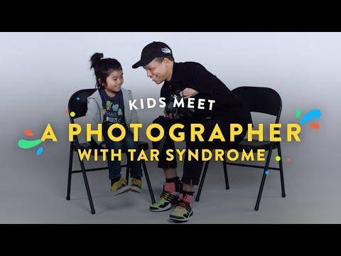 Kids Meet a Photographer with Tar Syndrome Kids Meet HiHo
