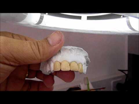 Porcelana pura Ceramco TOP studio dental