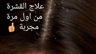 ارخص وابسط طريقة للتخلص من قشرة الشعر طبيعيا من اول استخدام مجربة