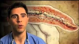 hirudo therapy