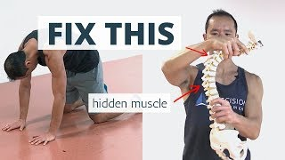 """Wake Up This """"Hidden"""" Muscle To Fix HUNCHBACK Posture (aka Kyphosis)"""
