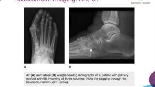 Midfoot Arthritis by Dr Jack Pang