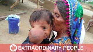Boy Born With Nose Bigger Than A Cricket Ball