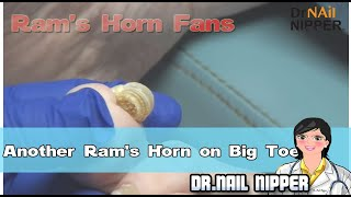Another Ram's Horn Nail on Big Toe