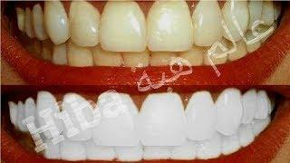 هل تعلم ماذا يفعل الملح والنعناع لاسنانك؟لن تصدق!! /تبييض الأسنان في دقيقتين وبمكونين فقط
