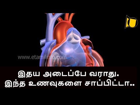 Xxx Mp4 How To Clear Heart Blockage Naturally Best Food For Heart Blockage 3gp Sex