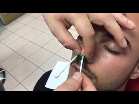 Xxx Mp4 ASMR Turkish Barber Massage Head Arm Face Back Massage Kafa Sırt Kol Yüz Masaj ı 3gp Sex