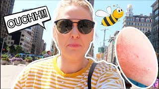 STUNG BY A BEE!!! TWICE!!!